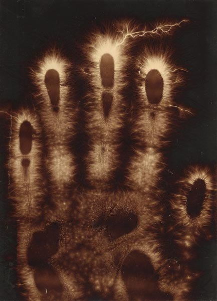 Electrograph of hand, 1900